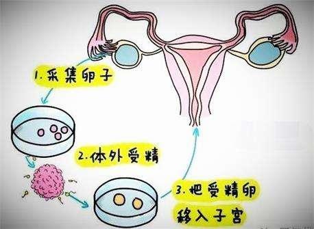 试管婴儿和普通婴儿有什么区别?不是将来不能生育,而是这个
